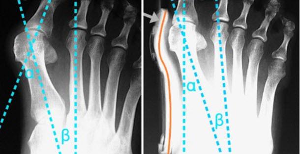 Hallufix Fussschiene vorher nachher Röntgen Bild